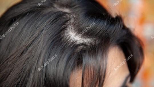 Det her med Tyndt hår er træls