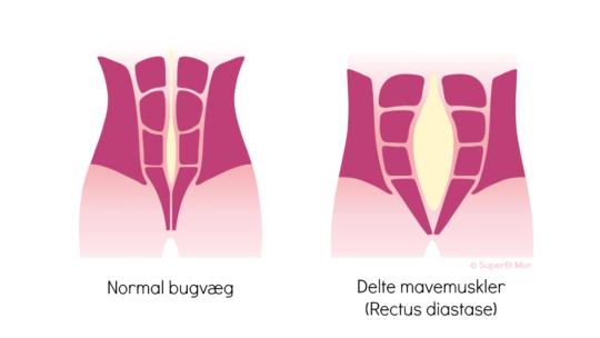 Løsningen på Delte mavemuskler